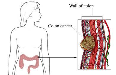Colon Cancer Western New York Urology Associates Llc
