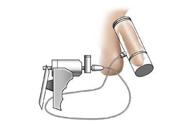 tratamientos con bomba de vacío para impotencia