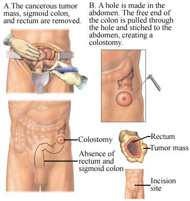 Surgical Resection of a Colorectal Tumor Mass