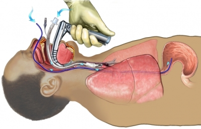 FI00035_96472_1_Endotracheal and Nasogastric Tube Insertion
