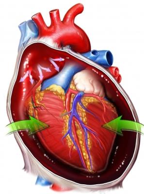 BP00077_96472_1_Cardiac Tamponade.jpg