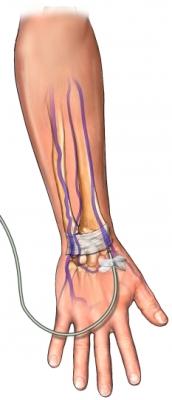 Vía intravenosa en brazo