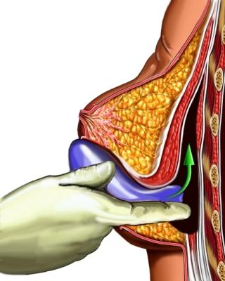 Implante de seno
