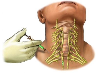 Cervical nerve block