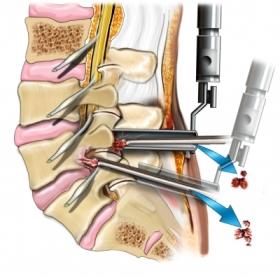 discectomía laparoscópica, pequeña