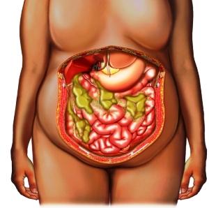 diverticulitis open abdomen