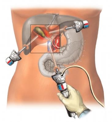 Vesícula biliar laparoscópica