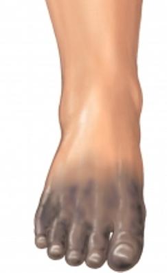 gangrene on foot