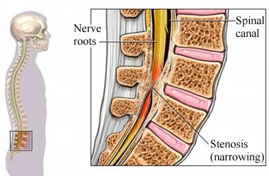 Stenosis of spine with punched nerve