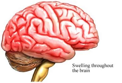 Swollen brain