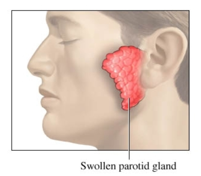 Swollen Parotid Gland