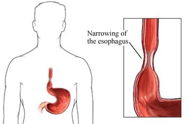 Esophageal Stricture secondary to Heartburn or GERD