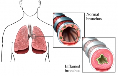 Inflammed Lung and asthma