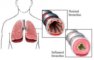 Pulmón inflamado y asma