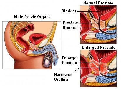 BPH prostate
