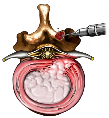 Laparoscopic Laminectomy