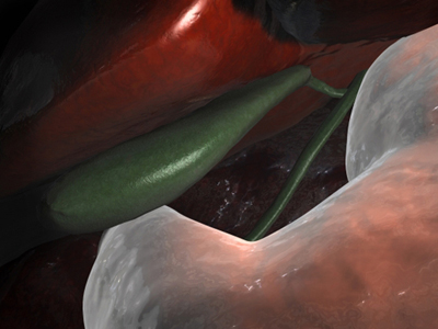 Laparoscopic View of Gallbladder
