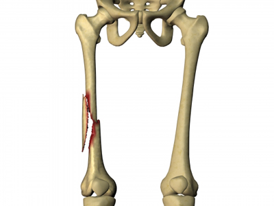Elderly people are subject to femoral breaks from falling due to weak bones