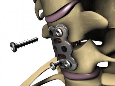 Insert Anterior Cervical Plate