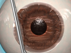 Open Lasik Flap